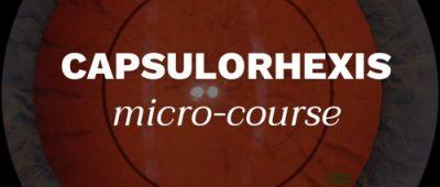 Capsulorhexis Micro-course